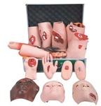 Модули травматических повреждений